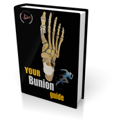 Your Bunion Guide