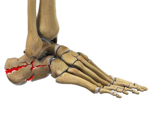 Heal Bone Fractures (Calcaneal Fractures)
