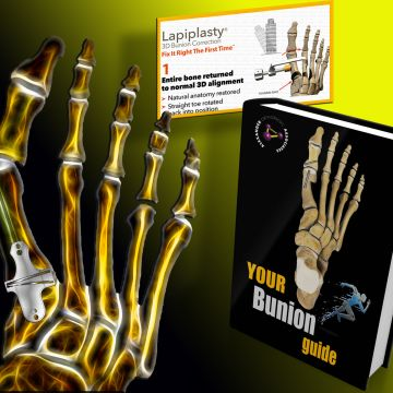 Customized 3D Bunion Reconstruction